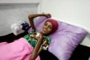 فتاة يمنية تعاني الهزال تعاود الابتسام لكن تعافيها غير مكتمل