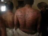 منظمات تحذر من تعرض حياة 5 معتقلين للخطر داخل السجن الحربي بصنعاء